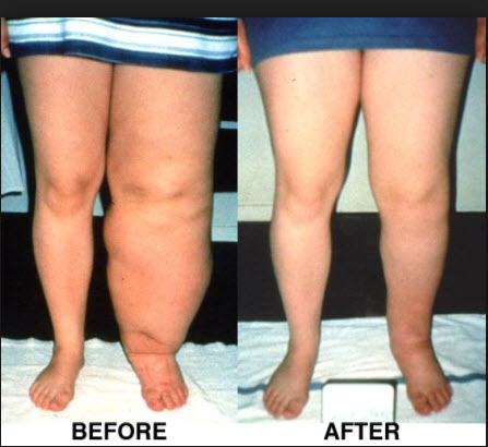 Lymphedema Symptoms You Must Recognize And Act On