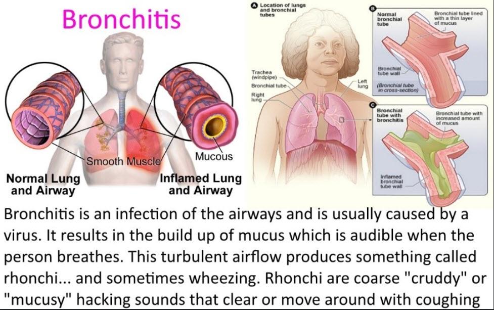 bronchitis or pneumonia
